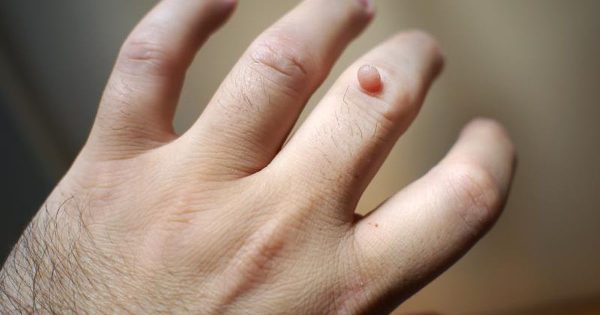 Home Remedies to Get Rid of Warts