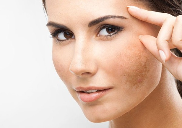Home remedies to treat for Melasma Pigmentation